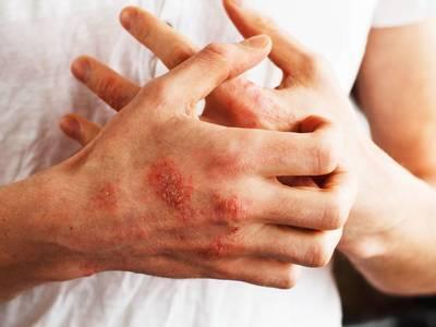 Thumb psoriasi