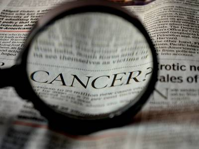 Thumb cancer 389921 1920  1