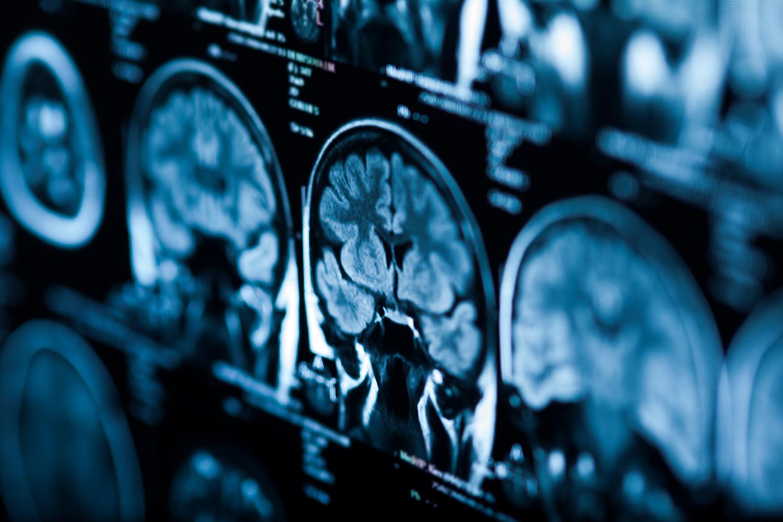 Tc cervello tumore cervello