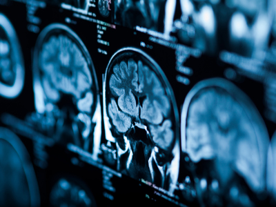 Thumb tc cervello tumore cervello