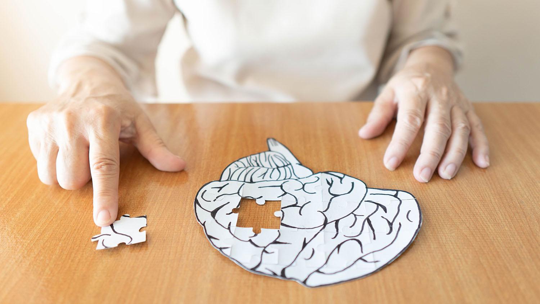Alzheimer demenza cervello