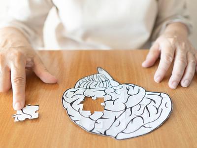 Thumb alzheimer demenza cervello