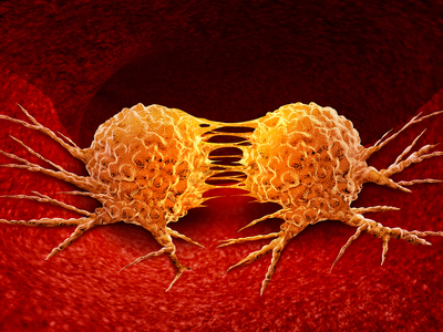 Thumb cellule tumorali tumori